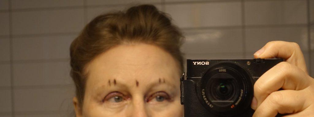 Ögonlocksplastik operation